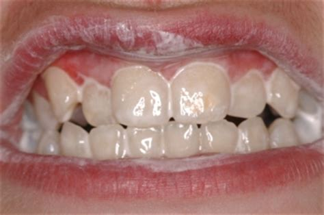 benefits of teeth cleaning picture 2
