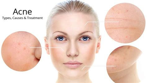 where can i buy clindatech acne treatment in picture 13
