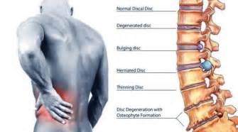 right rib muscle pain relief picture 15