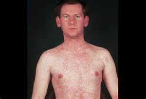fungal skin rash picture 14