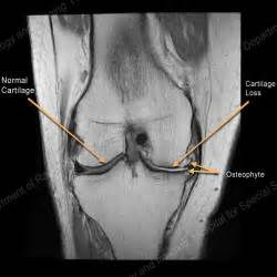 spot delayed osteoarthritis picture 10