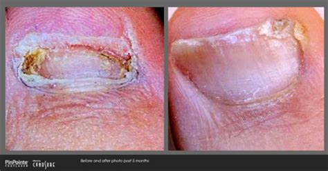 laser for nail fungus chicago, il picture 3