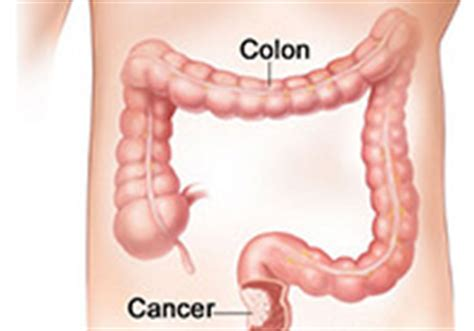 chineese medicine for colon cancer picture 18