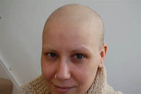 cancer hair picture 17