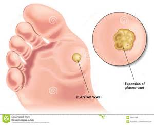 wart planters picture 1