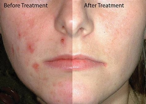 treatment of discoloration from acne picture 6