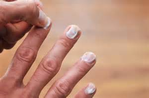 nail fungus remedy using tea tree oil picture 9