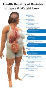 weight loss surgury picture 9
