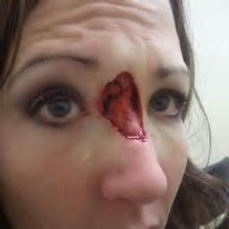 dermatologist skin tumors picture 21