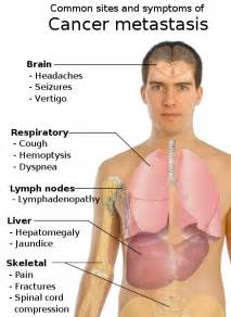 bladder cancer signs symptoms picture 6