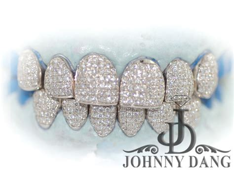 diamond grills for teeth picture 2