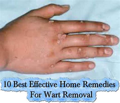 home remedy wart removal picture 5