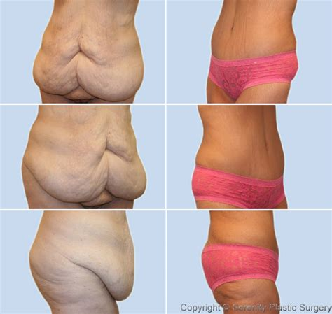 how to avoid extra skin from weight loss surgery picture 8