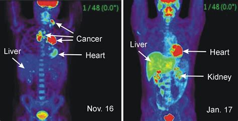 can a cat scan see colon cancer picture 2