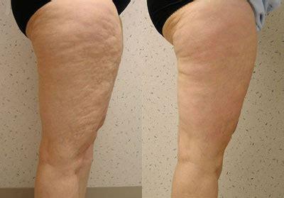 cellulite pictures picture 6
