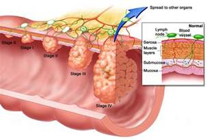 colon cancer warnings picture 7