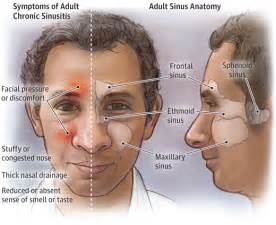 fever sinus andjoint aches picture 13