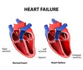 congenital heart condition in adolescent with high blood picture 8