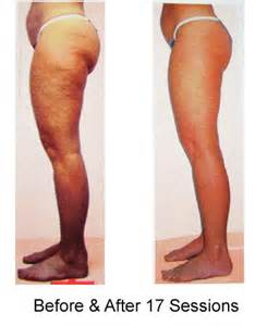 cellulite therapy picture 1