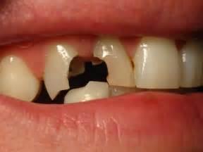 broken teeth picture 1