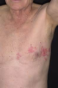herpes on the chest picture 5
