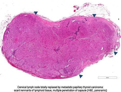 encapsulated papillary thyroid cancer picture 5