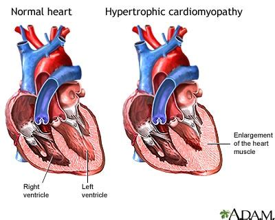 heart muscle about a centimeter thick picture 3
