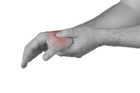 hand and foot joint pain picture 11