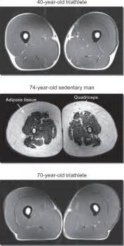 aging muscle lose picture 5