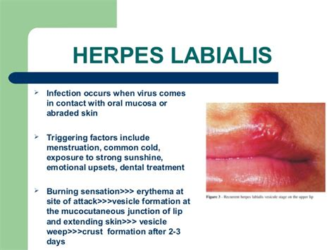 exposure to herpes simplex 2 picture 9