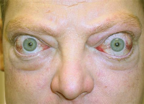 skin cancer symptoms early stages picture 7