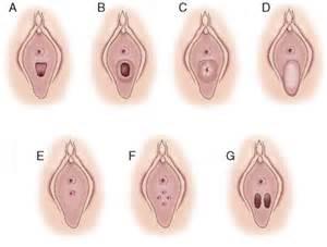 Fimbriata hymen picture 1