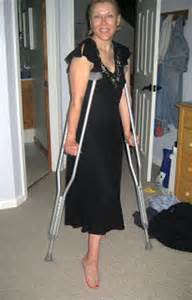 women leg amputee high level on crutches picture 7