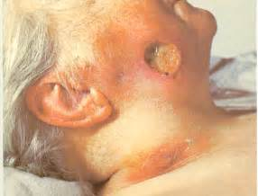 endocrine acne disorders picture 5