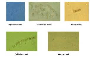 yeast in urine picture 5