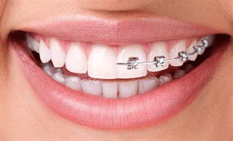 braces teeth high school fifties picture 3