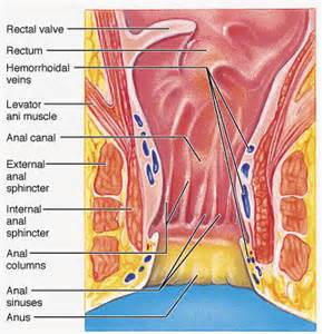 alternative treatment for hemorrhoids picture 18