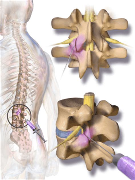 facet joint injection picture 18