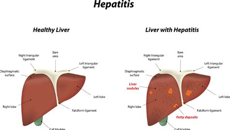 what it means when your liver enzymes are picture 3