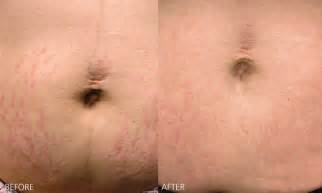 does herbal pills really work for stretch marks picture 19