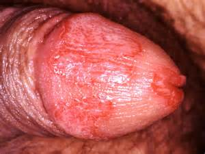 vaginal yeast infection picture 9