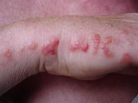 bed bug sores on skin picture 1