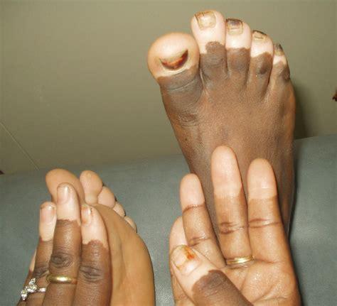 skin care for vitaligo picture 1