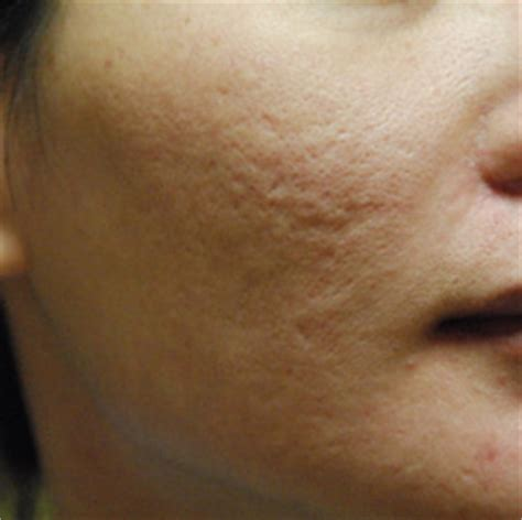 acne scars pock marks picture 9