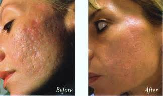 laser acne treatments picture 1