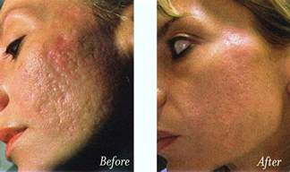skin resurfacing picture 2