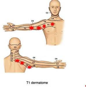 dull pain in arm and shoulder picture 5