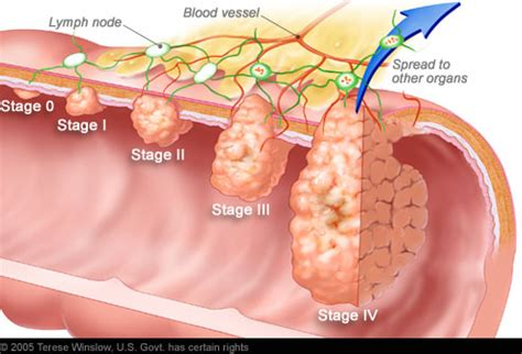 colon cancer stage 0 picture 2