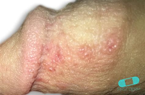 pictures of genital herpes picture 1