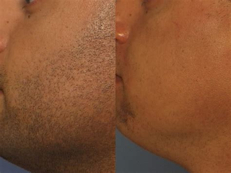 laser hair removal picture 1